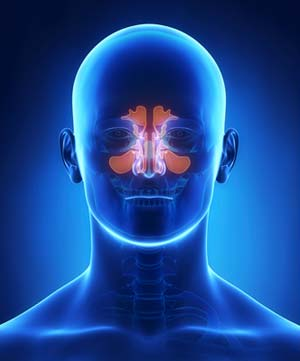 Sinusitis is treated by the doctors at Redding Allergy and Asthma Specialists